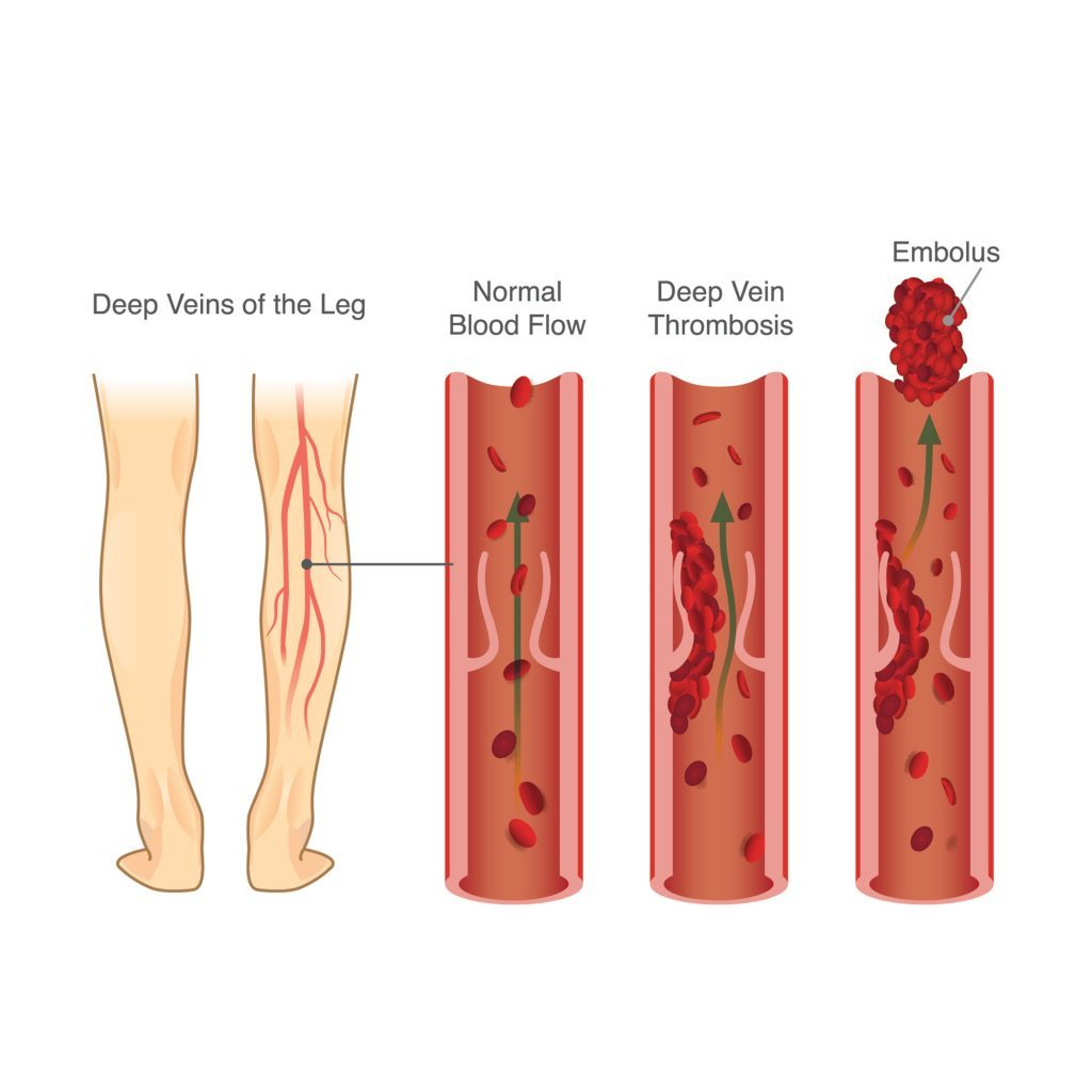 What causes DVT?